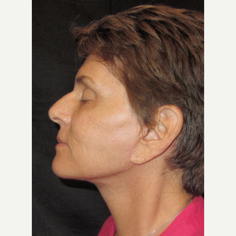 55-64 year old woman treated with Facelift after 3320703