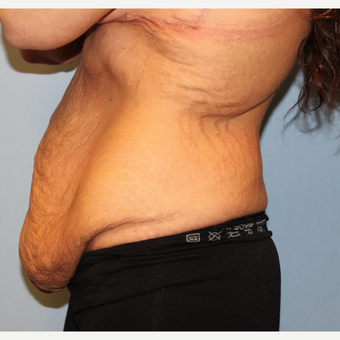 35-44 year old woman treated with Body Lift after massive weight loss 1548578
