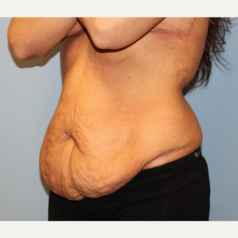 35-44 year old woman treated with Body Lift after massive weight loss before 1548578