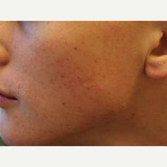 Acne and Scars Treated with Accutane and Fraxel
