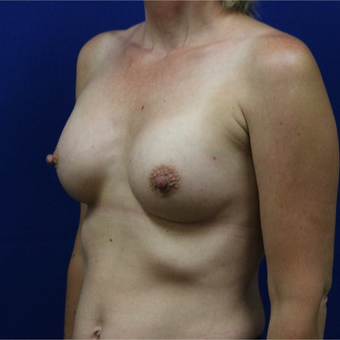 35-44 year old woman treated with Breast Implants after 3685687