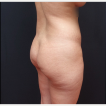 25-34 year old woman treated with Tumescent Liposuction before 3280020