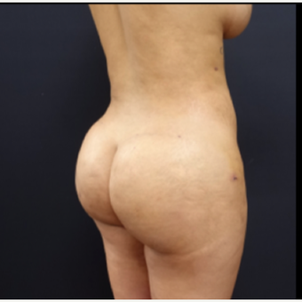25-34 year old woman treated with Tumescent Liposuction after 3280020