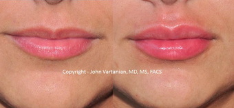 18-24 year old woman treated with Lip Augmentation before 3810279