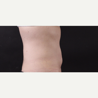 49 year old woman treated with CoolSculpting after 3630295
