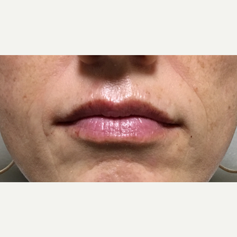 45-54 year old woman treated with Volbella after 3732067