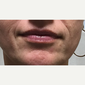 45-54 year old woman treated with Volbella before 3732067