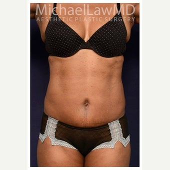 45-54 year old woman treated with Mini Tummy Tuck after 2149015