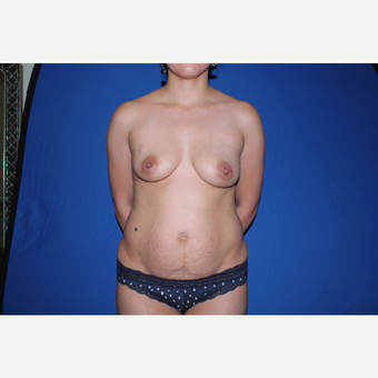 35-44 year old woman treated with Mommy Makeover before 3769745
