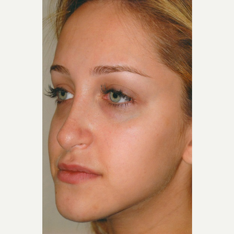 18-24 year old woman treated with Rhinoplasty before 3465214