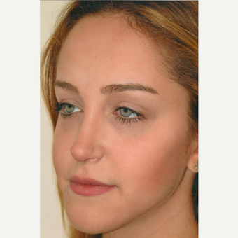 18-24 year old woman treated with Rhinoplasty after 3465214