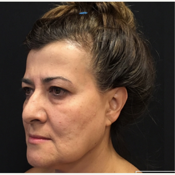 35-44 year old woman treated with Laser Treatment before 3665213