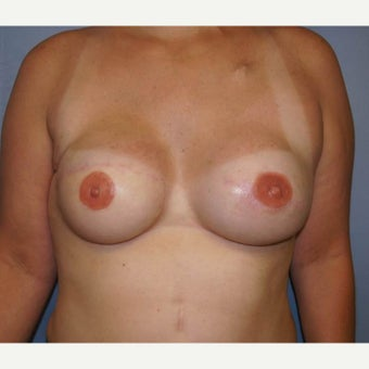 DIEP flap breast reconstruction after 1710786