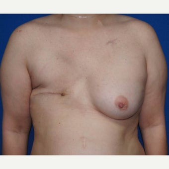 DIEP flap breast reconstruction before 1710786