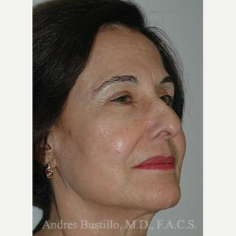 61 year old woman treated with Facelift before 3486341