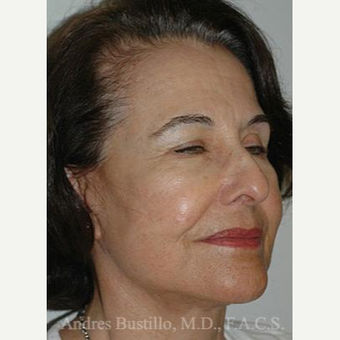 61 year old woman treated with Facelift after 3486341