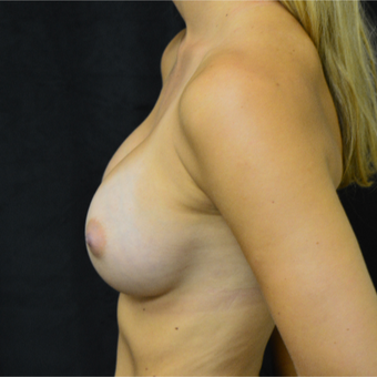 18-24 year old woman treated with Breast Augmentation after 3423998