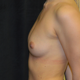 18-24 year old woman treated with Breast Augmentation before 3423998