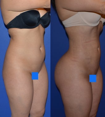 Brazillian Butt LIft (Liposuction with Fat Transfer) before 1365603