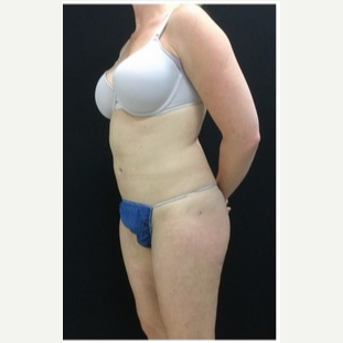 25-34 year old woman treated with Liposuction to Abdomen & Thighs after 3200809
