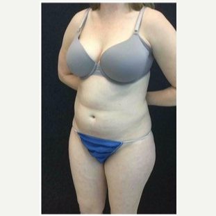 25-34 year old woman treated with Liposuction to Abdomen & Thighs before 3200809