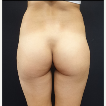 25-34 year old woman treated with 548cc Silicone Butt Implants before 3033249