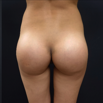 25-34 year old woman treated with 548cc Silicone Butt Implants after 3033249