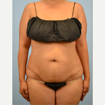 32 year old woman treated with Tummy Tuck before 3432229