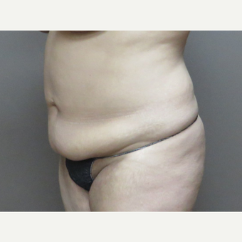35-44 year old woman treated with Tummy Tuck before 3226455