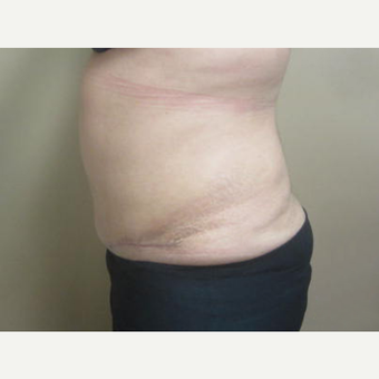 35-44 year old woman treated with Tummy Tuck after 3226455