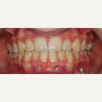 17 or under year old woman treated with Braces after 3188541