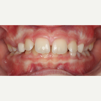 17 or under year old woman treated with Braces before 3188541