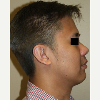 25-34 year old man treated with Rhinoplasty after 3215497