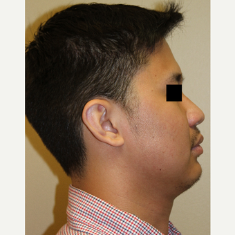 25-34 year old man treated with Rhinoplasty before 3215497
