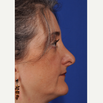 46 year old woman treated with Rhinoplasty before 3220490