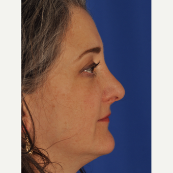 46 year old woman treated with Rhinoplasty after 3220490