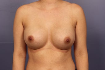 Breast Augmentation after 3657218