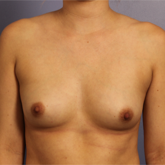 Breast Augmentation before 3657218