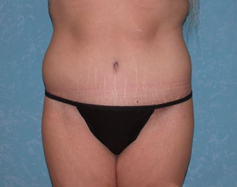 Circumferential Body Lift after 856548
