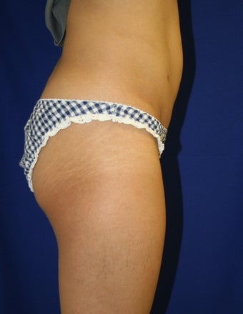 Smartlipo to upper/lower abdomen and hips 881770