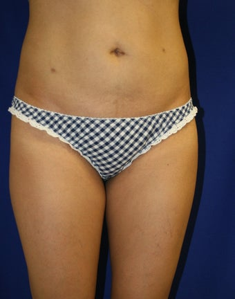 Smartlipo to upper/lower abdomen and hips after 881770