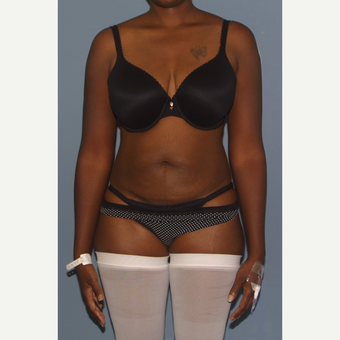25-34 year old woman treated with Tummy Tuck before 3558400