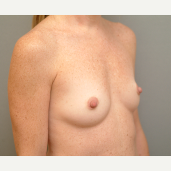 25-34 year old woman treated with Breast Implants