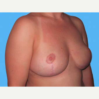 Breast Implant Removal after 3831813
