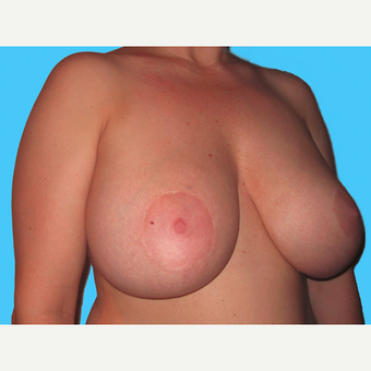 Breast Implant Removal before 3831813