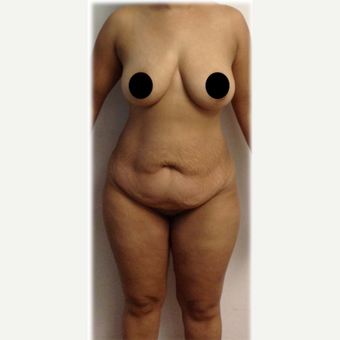 25-34 year old woman treated with Tummy Tuck before 2357997