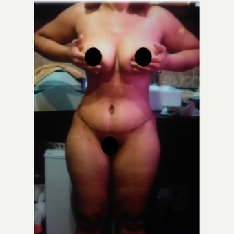 25-34 year old woman treated with Tummy Tuck after 2357997
