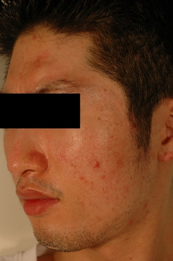 Pore Size Reduction/Acne Scars before 996172