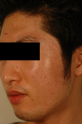 Pore Size Reduction/Acne Scars after 996172