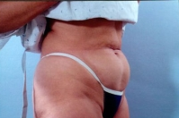 Liposuction before 3446268